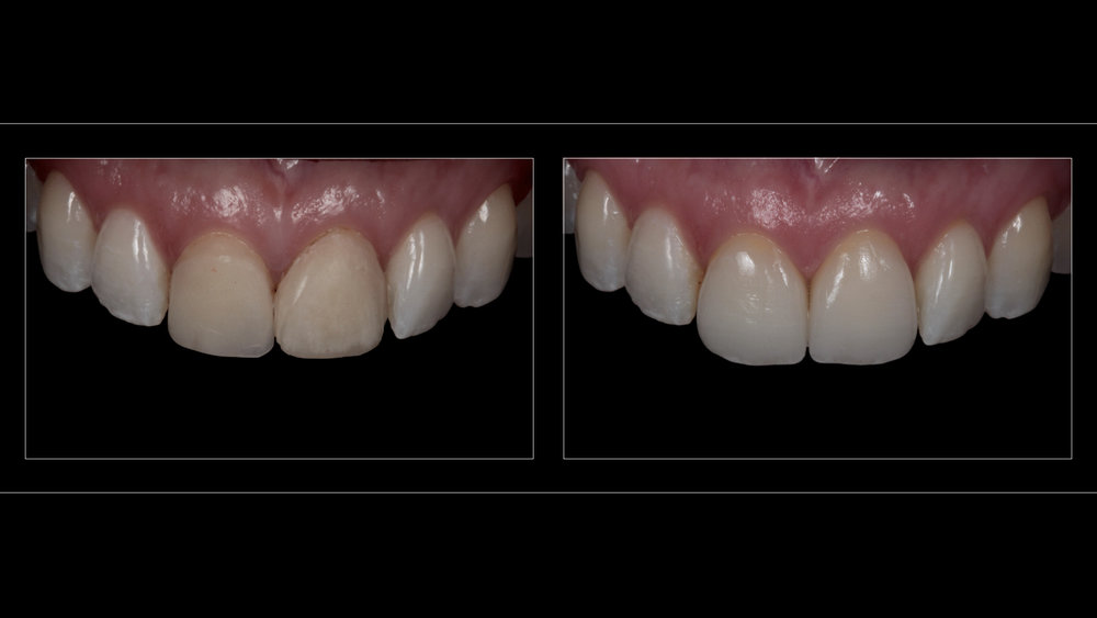 Porcelain Laminate Veneers (2 Upper Incisors)