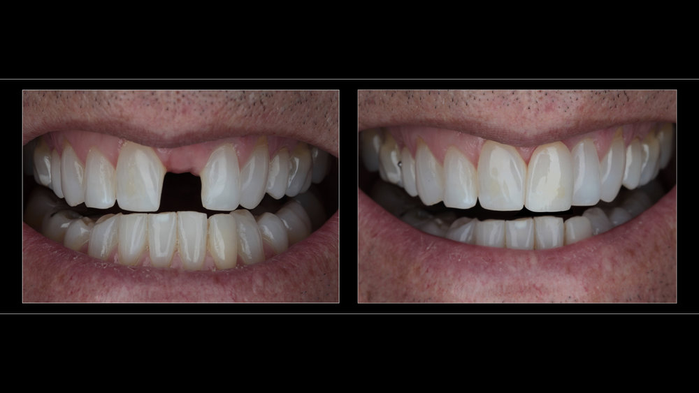 Partial Denture With All-Ceramic Crown (Replacing Upper Left Incisor)