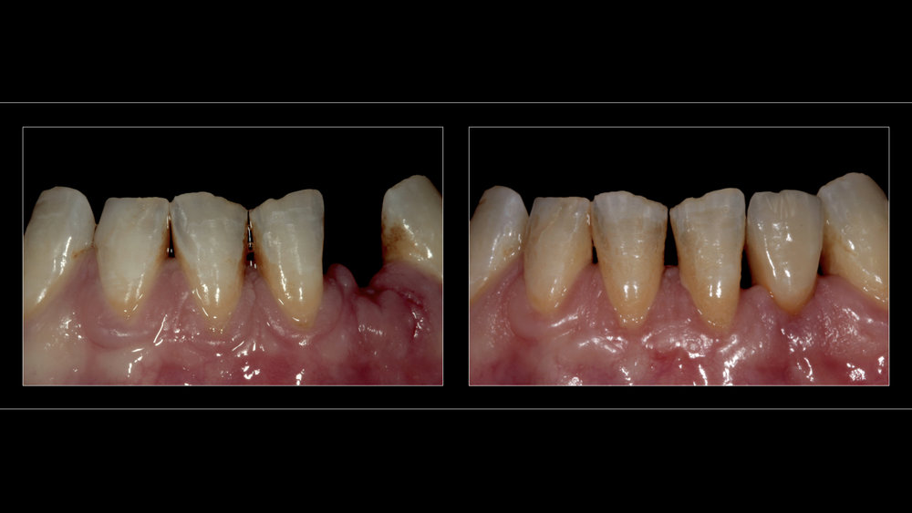 Metal-Ceramic Implant Crown (Replacing Lower Left Incisor)