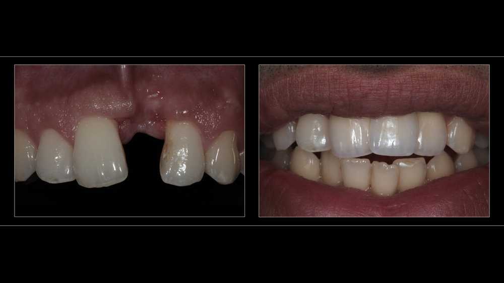 All-Ceramic Zirconia Core Bridge (Replacing Left Upper Incisor)