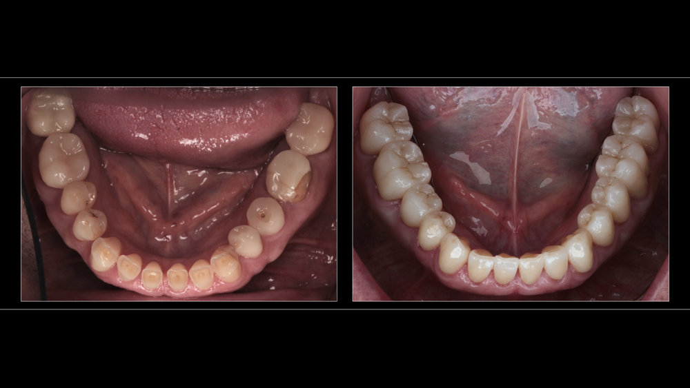 Complete Arch Rehabilitation (14 Teeth) With Full-Contour All-Ceramic Zirconia Crowns