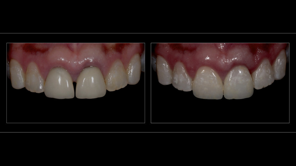 CAD/CAM All-Ceramic Crowns (2 Upper Incisors)