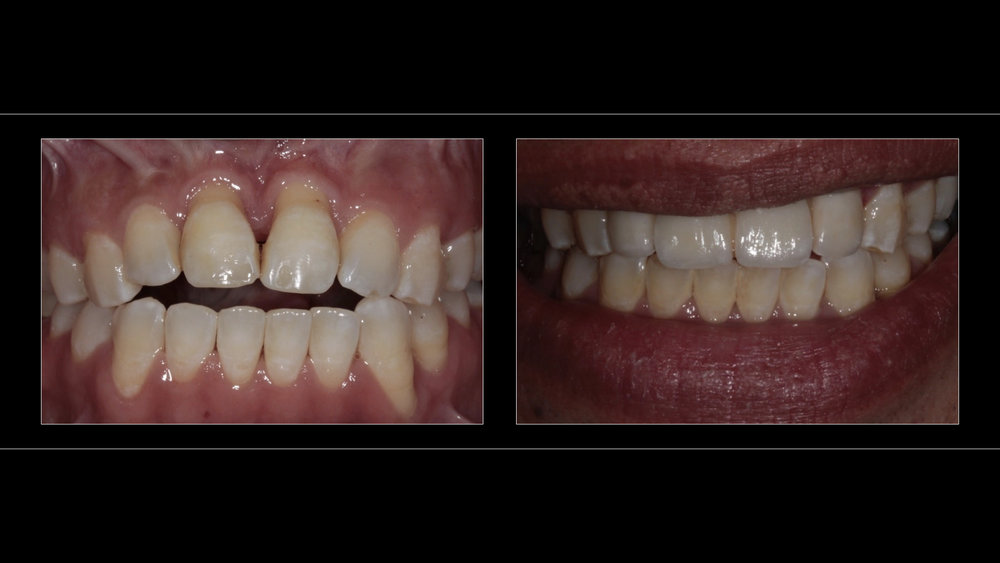 All-Ceramic Zirconia Core Bridge (Upper 4 Incisors)