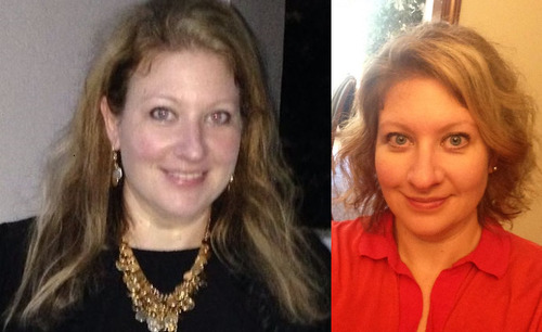 Hair Loss After Bariatric Surgery Not A Myth Bariatric Mindset