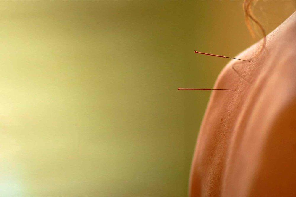 akupunktur-behandling