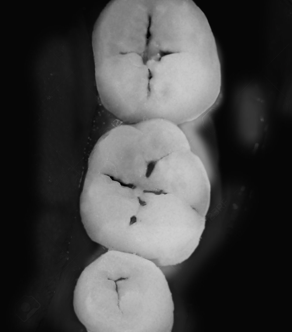 Transilluminating Light used to highlight cavities in the teeth.