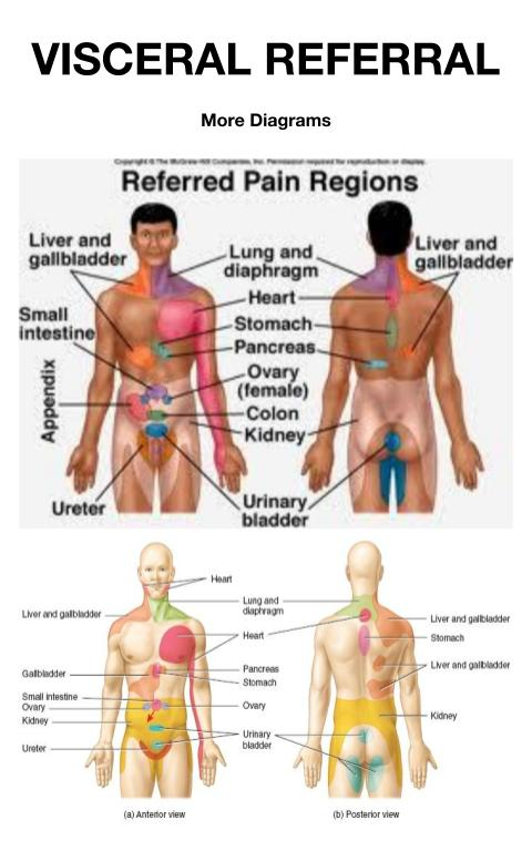 Visceral Pain Referral SnapSPT 👻 Beauteous Referred Pain Patterns