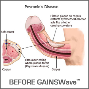GAINSWave™ is a revolutionary Peyronie's Disease treatment for Men