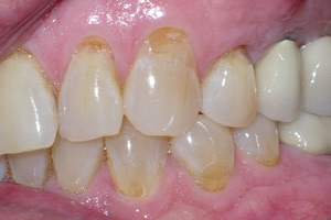 Enamel abrasion from aggressive tooth brushing.