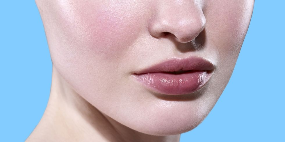 What It's Really Like Living with Rosacea