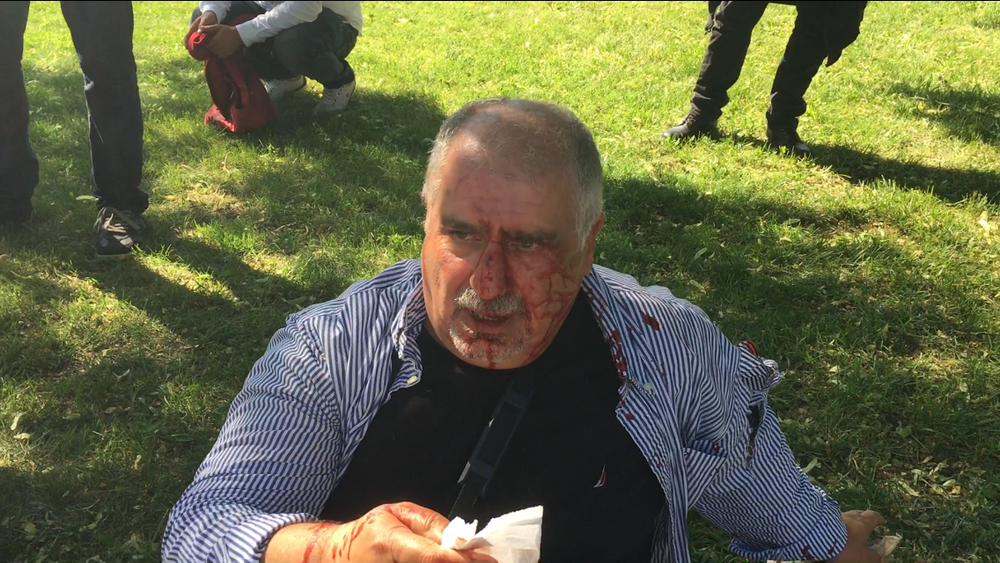 A Kurdish American man beaten by Turkish security forces. Photo courtesy of Baltimore Bloc