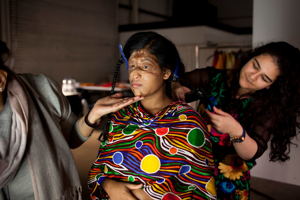Sonali, 15, had acid thrown on her as a baby. Picture: ActionAid.