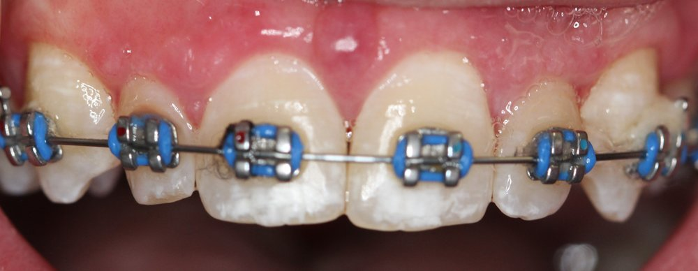 A simple procedure was done to uncover the crowns. The esthetics and the gum health were improved!
