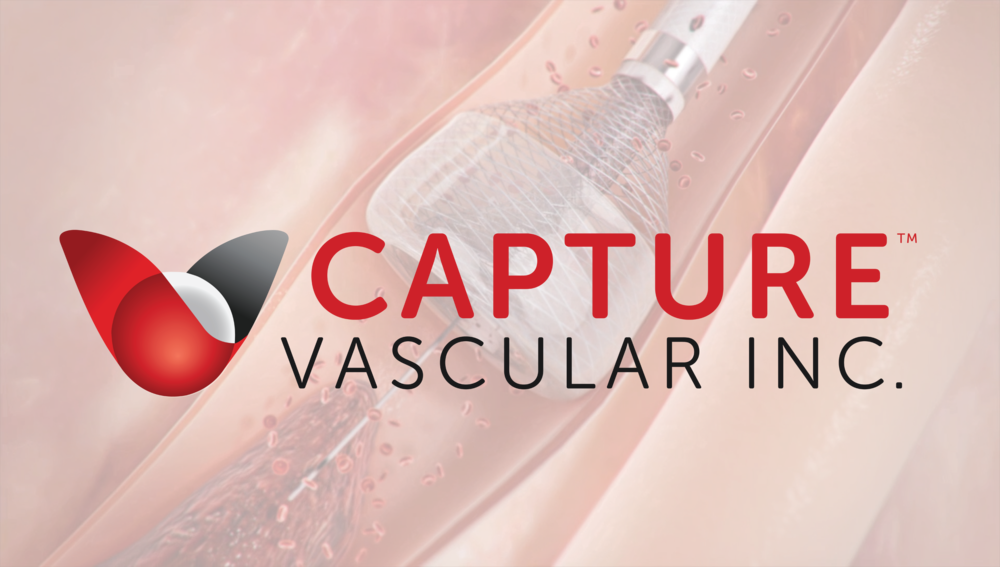 Capture's proprietary MegaVac Mechanical Thrombectomy System offers several unique features in one simple device.     L     EARN MORE