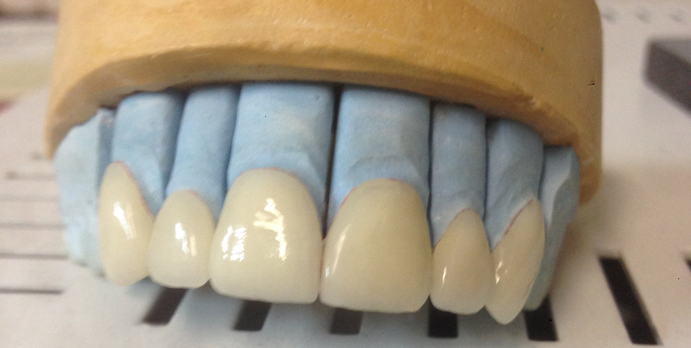 Khzam Dental Ceramics Veneer