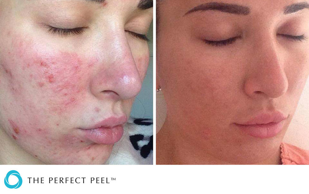 Chemical_Peels_-The_Perfect_Peel_BandA_02.jpg