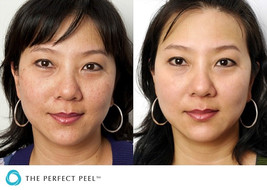Perfect-Peel-Before-After-Acne-Asian.jpg
