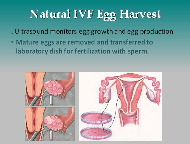 Natural-IVF-Egg-Harvest-West-Coast-Fertility-Centers-Orange-County.jpg