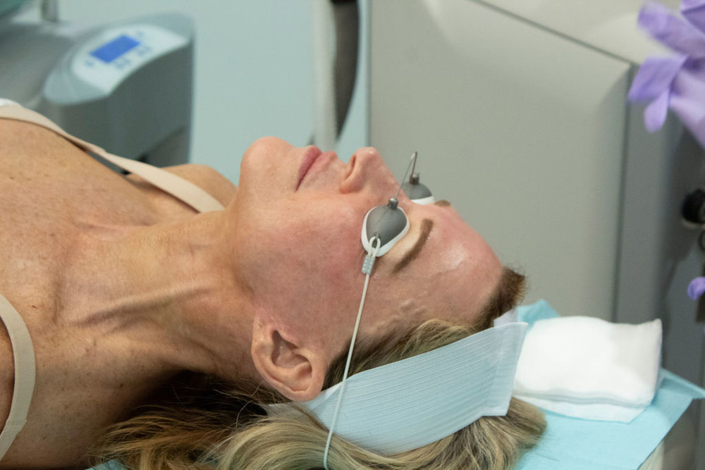 Halo Laser Facial Treatment - Crazy Blonde Life