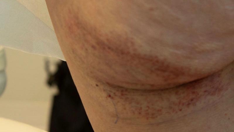 Profound Laser Treatment - Robinson Facial Plastic Surgery