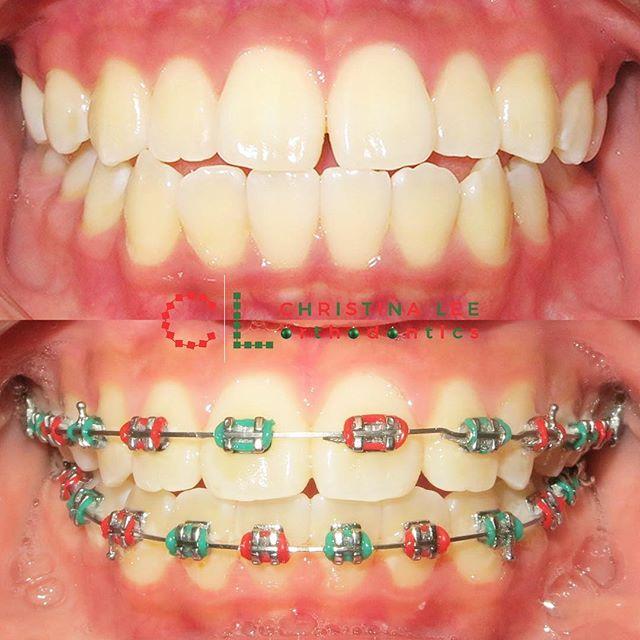 #MerryChristmas everyone! Hope it's all #smiles! 😁🎄🎅🎁 . . . #seattleorthodontist #southlakeunionorthodontist #belltownorthodontist #orthodontist #orthodontics #🆑orthodontics #braces #clearbraces #ceramicbraces #metalbraces #invisalign #clearaligners #adultbraces #adultortho #bracesclub #bracesarebeautiful #christmasbraces #christmasspirit #holidaystyle #dentistry #dental #dentista #odontologia #ortodoncia #smile #workinprogress #transformationtuesday