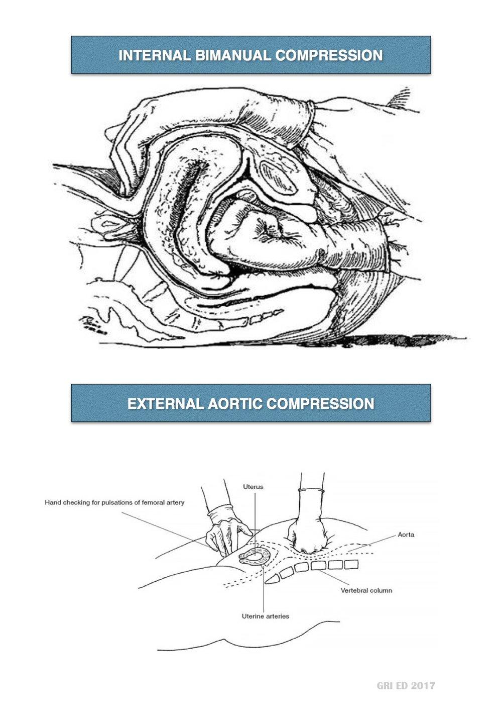 Postpartum Haemorrhage JPEG 2.jpg