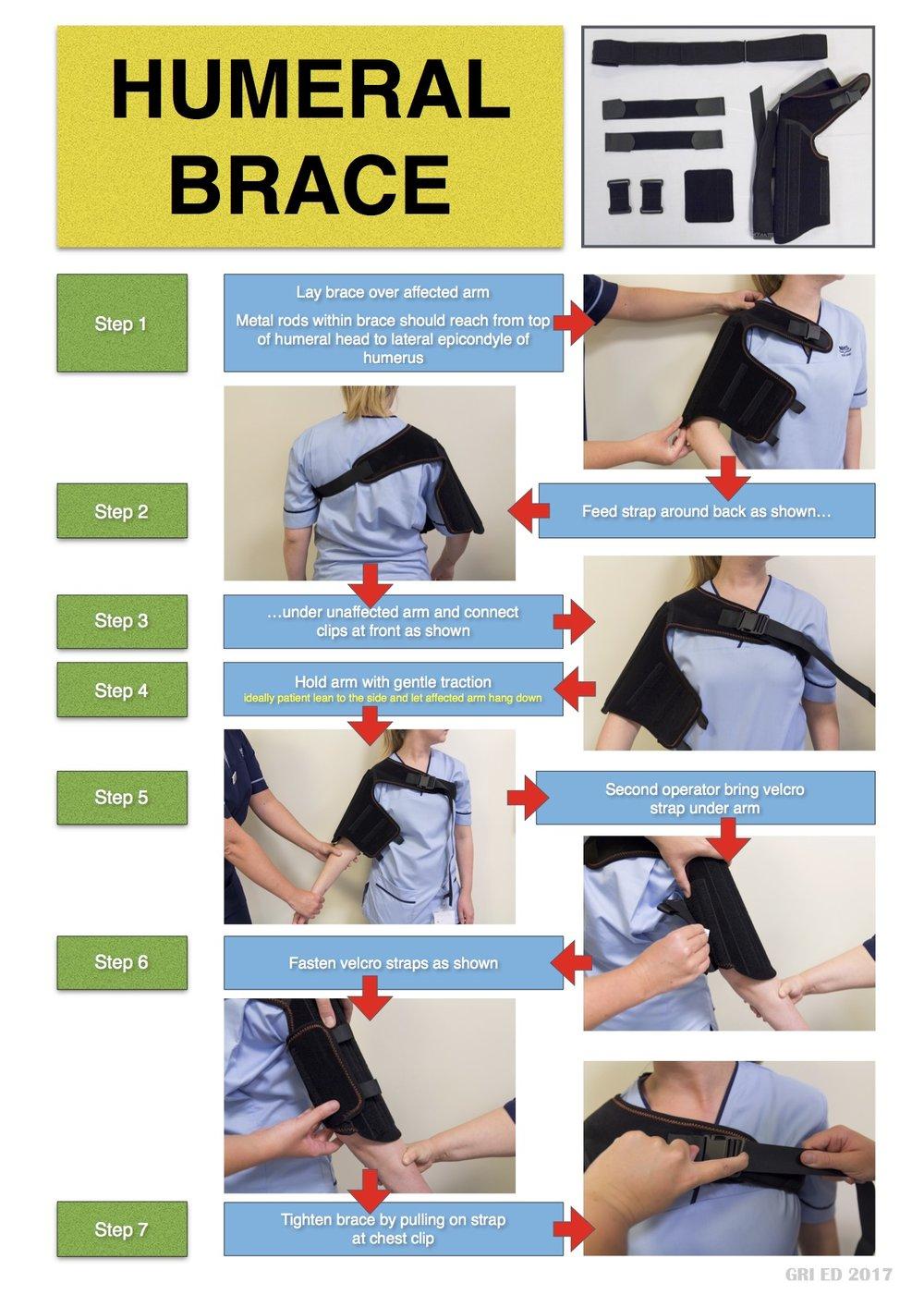 Humeral Brace JPEG 1.jpg