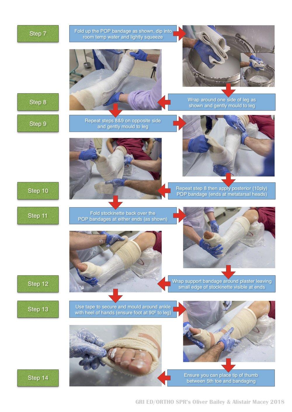 LOWER LEG PLASTER 2.jpg