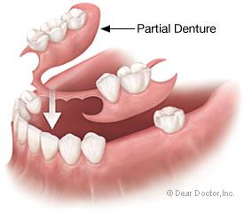 partial-denture2.jpg