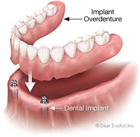 implant-overdenture.jpg