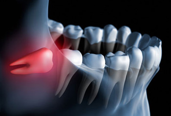 wisdom-tooth350.jpg