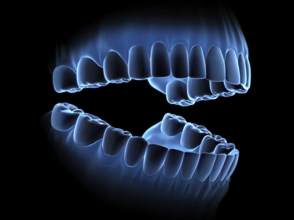 Jak-nam-szkodza-dentysci.jpg