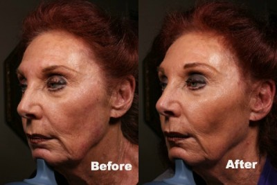 Before and after Voluma2