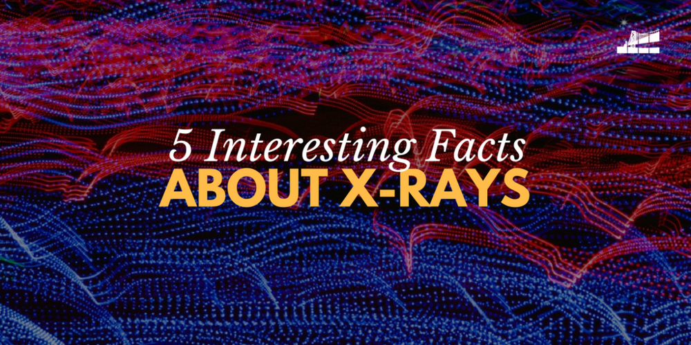 5 Interesting Facts About X Rays Bay Imaging Consultants