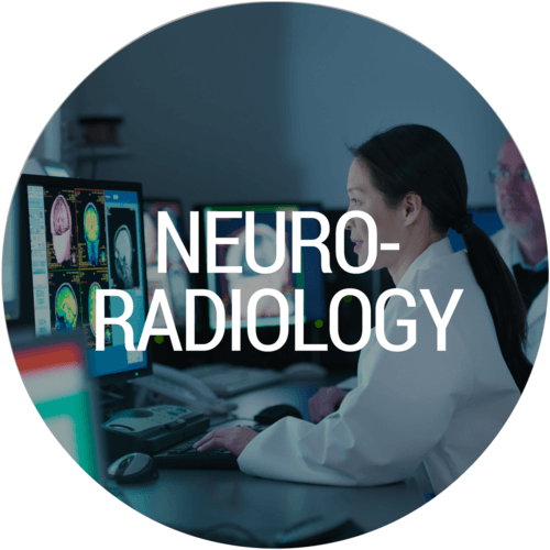 neuroradiology specialty at bay imaging consultants