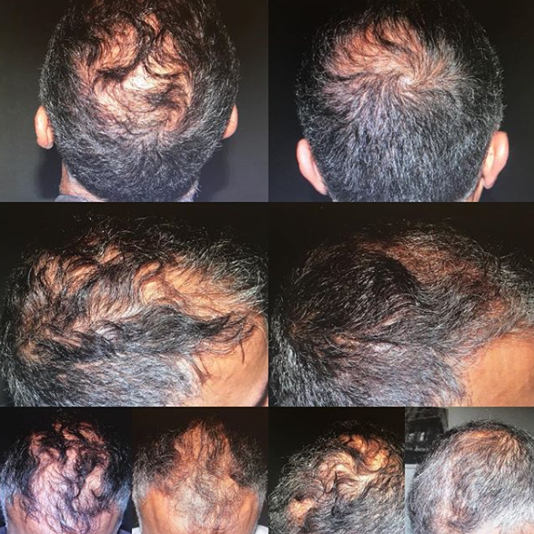 Our Male Patient after only 3 PRP treatments for hair loss. The left photographs were taken before the initial treatment, the right are following 3 treatments, 2 weeks apart.