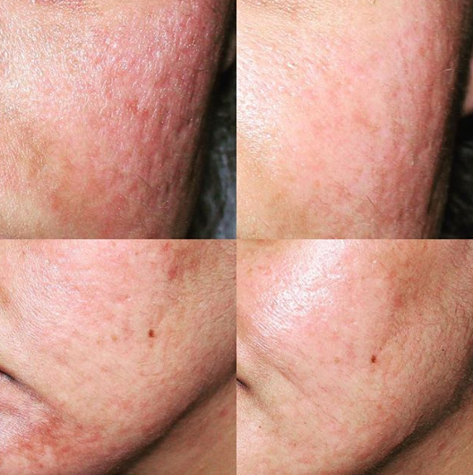 Incredible skin transformation from only 3 microneedling treatments, 2 chemical peels and medical grade  @zoskincentre  skincare and  @neocutis  growth factors! Left to right you'll see a reduction in acne scarring, both textural and pigmented, as well as hyperpigmentation in the lower face.