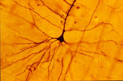 Golgi stain of human pyramidal neuron