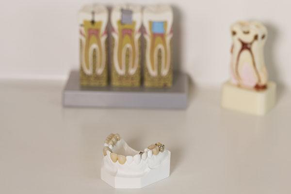tooth models.jpg