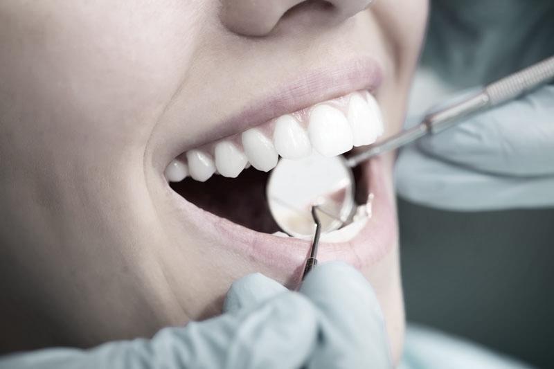 Close-up of dental hygiene examination