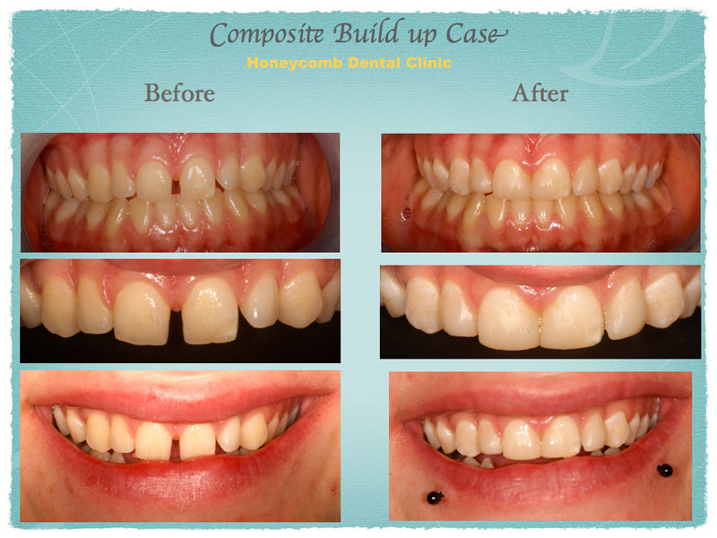 composite-build-up-case.jpg