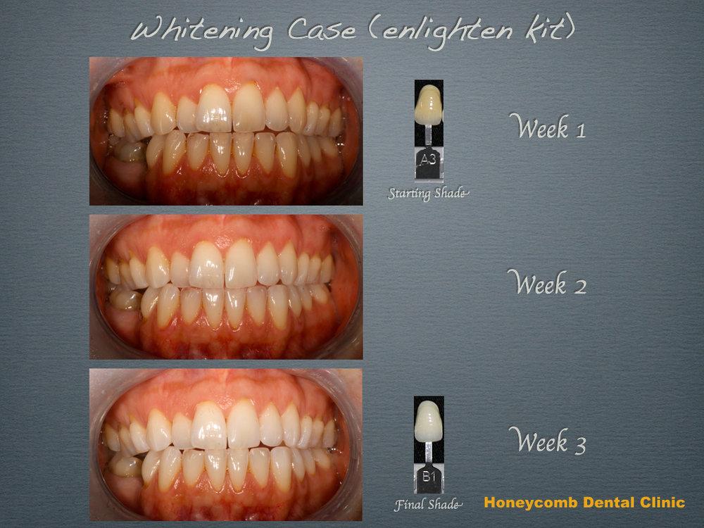 whiteningHDC (3).jpg