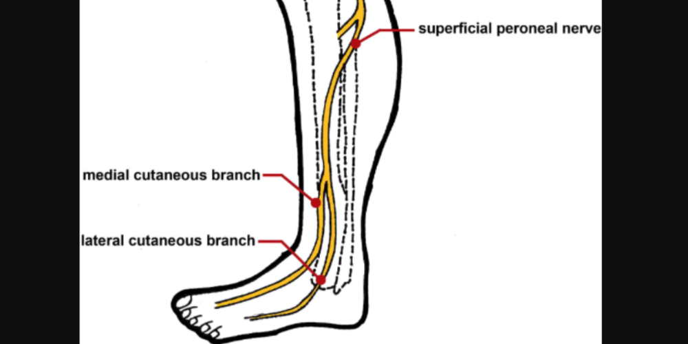 Superficial peroneal nerve injury in a professional runner: A case ...