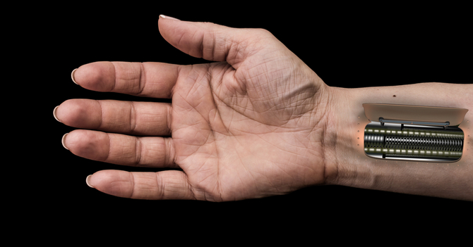 Neuroprosthetics and the Future of Artificial Touch
