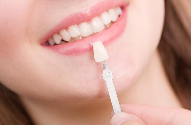 dental-veneers-small.jpg