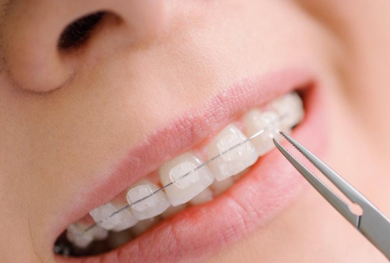 dentistry-orthodontics-small.jpg