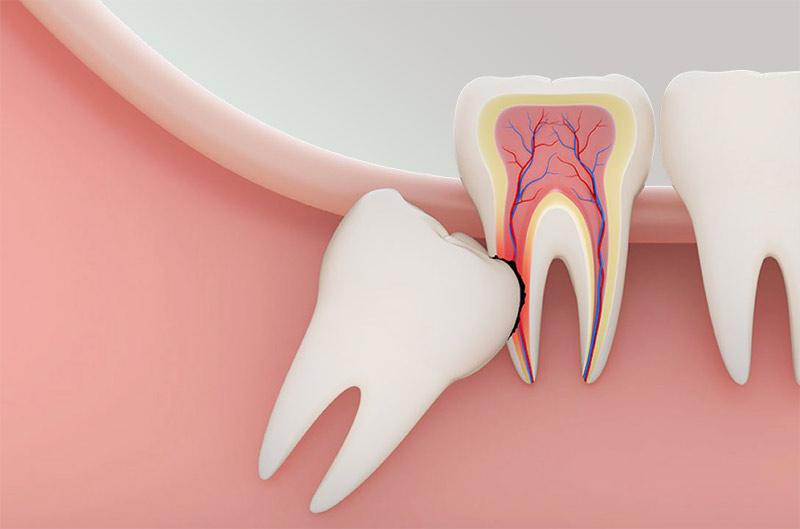 wisdom-teeth-removal-small.jpg