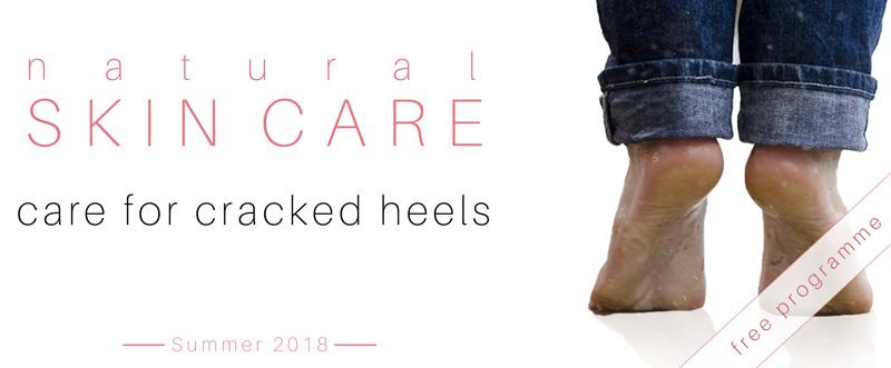 02-cracked-heels.jpg