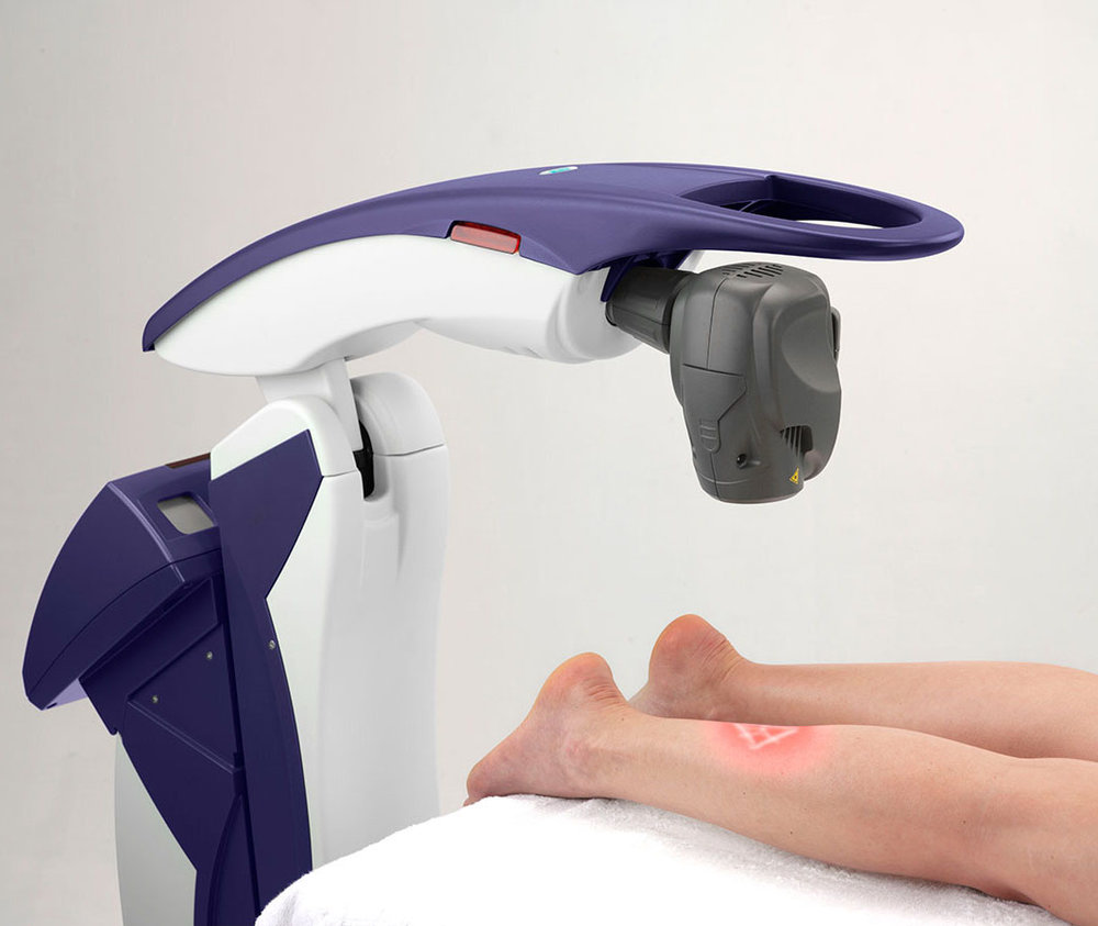 MLS_Laser_Application_LowerLeg1.jpg
