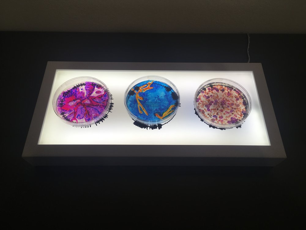 """What Doesn't Kill You,"" Alcohol Ink on Petri Dishes, 14""x6"" Light Box"